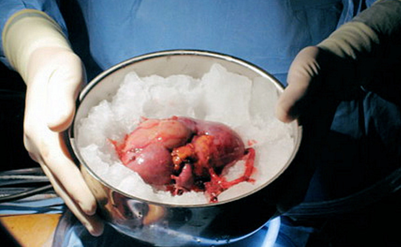 Сколько стоит генетический анализ крови - 446