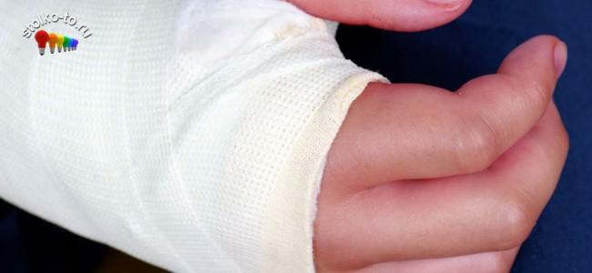 Насколько больно сломать руку или ногу